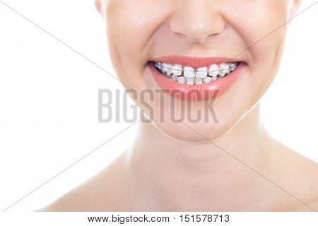 Brace. Bracket. Beautiful macro shot of white teeth with braces. Dental care. Beauty female smile with ortodontic accessories. Orthodontics treatment. Healthy female mouth over white background