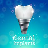 Dental Implant Logo Surgery Dentistry Vector Illustration. Medical Conception for Tooth Clinic.Sparkling Tooth Implant Clean Enamel on Blue Blur Pattern.Implant Crown and Abudment for Dental Clinic poster