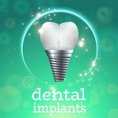 Dental Implant Logo Surgery Dentistry Vector Illustration. Medical Conception for Tooth Clinic.Sparkling Tooth Implant Clean Enamel on Green Blur Pattern.Implant Crown and Abudment for Dental Clinic poster