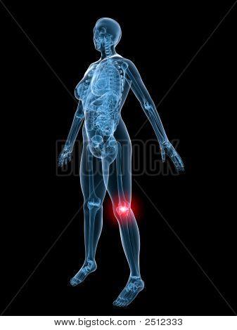 X Ray Anatomy-Painful Knee