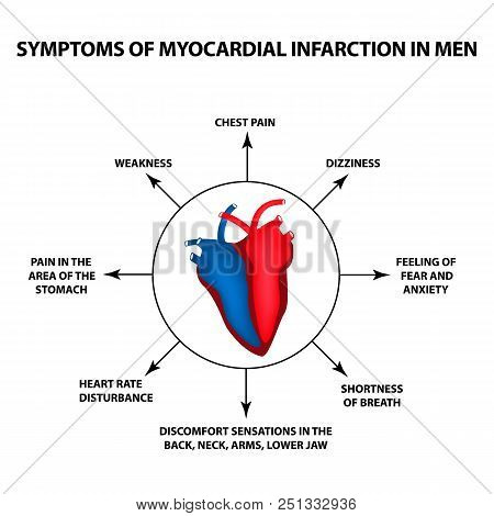 Symptoms Of Myocardial Infarction In Men. A Heart Attack. World Heart Day. Vector Illustration On Is