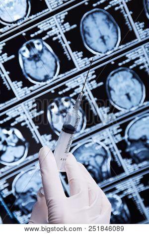 Magnetic Resonance Scan Of The Brain. Mri. Syringe In Hand