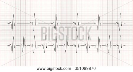 Cardiogram, Heartbeat, Electrocardiogram With Red Mesh. Healthcare, Life And Heart Examination Conce