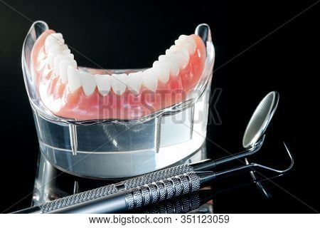 Teeth Model Showing An Implant Crown Bridge Model/ Dental Demonstration Teeth Study Teach Model.