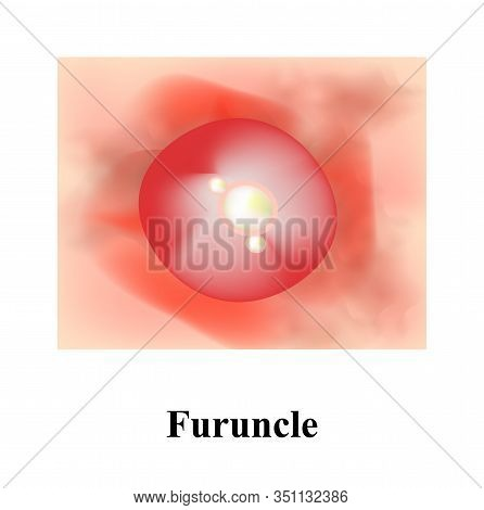 Pustules On The Skin. Cystic Acne. Pimples On The Skin. Furuncle. Infographics. Vector Illustration.