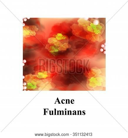 Pustules On The Skin. Acne Fulminans. Cystic Acne. Pimples On The Skin. Furuncle. Infographics. Vect