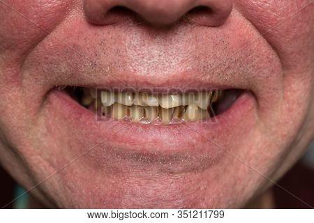Crooked yellow teeth of a smoking man close-up