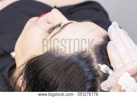 At Beauty Clinic They Inject With A Syringe In The Black Roots Of The Hair For Regeneration. Stimula