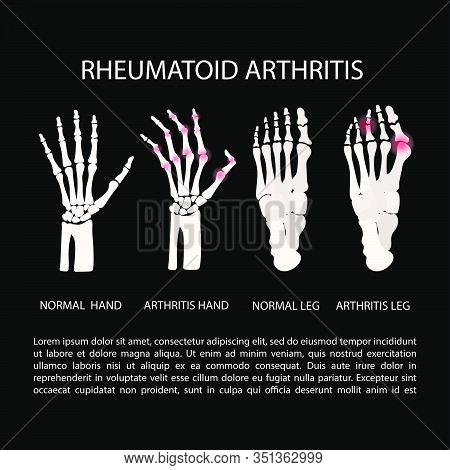 Artritis Hand Leg Rheumatoid Chronic Disease Medicine Education Diagram Vector Scheme Human Hand Dra
