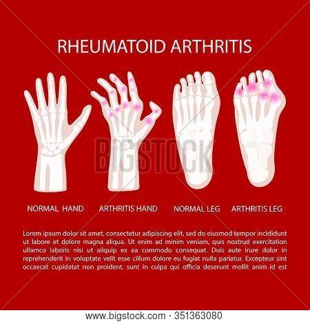 Artritis Leg Hand Rheumatoid Chronic Disease Medicine Education Diagram Vector Scheme Human Hand Dra