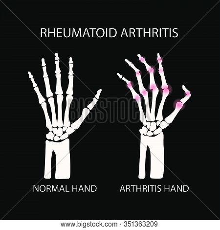 Rheumatoid Artritis Black Chronic Disease Medicine Education Diagram Vector Scheme Human Hand Draw V