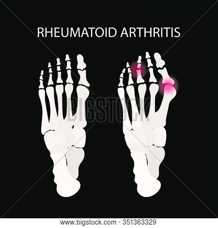 Rheumatoid Artritis Leg Chronic Disease Medicine Education Diagram Vector Scheme Human Hand Draw Vec