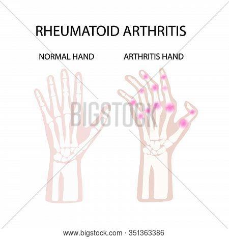 Rheumatoid Artritis White Chronic Disease Medicine Education Diagram Vector Scheme Human Hand Draw V