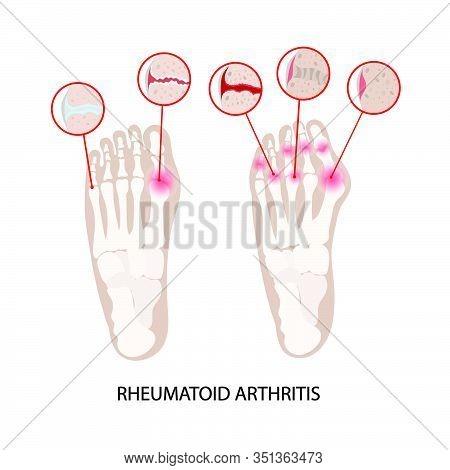 Rheumatoid Disease Leg Artritis Chronic Illness Medicine Education Diagram Vector Scheme Human Hand