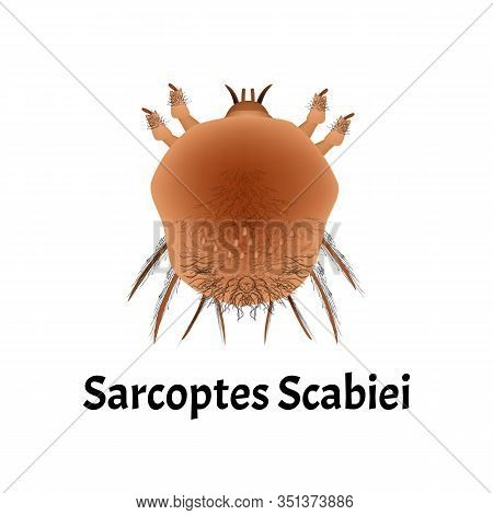 Sarcoptes Scabiei. Scabies. Sexually Transmitted Disease. Infographics. Vector Illustration On Isola