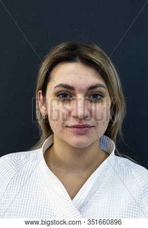 Beautiful Woman Brunette Gets Enlarged Pores, Blemish, Pimple Or Acne And Dull Skin On Her Face. Cha