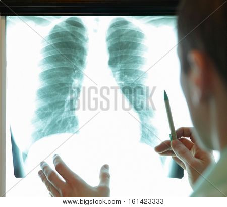specialist watching image of chest at x-ray film viewer