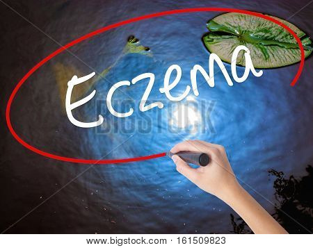 Woman Hand Writing Eczema With Marker Over Transparent Board