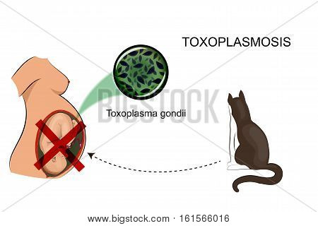 vector illustration of infection of a pregnant woman for medical publications