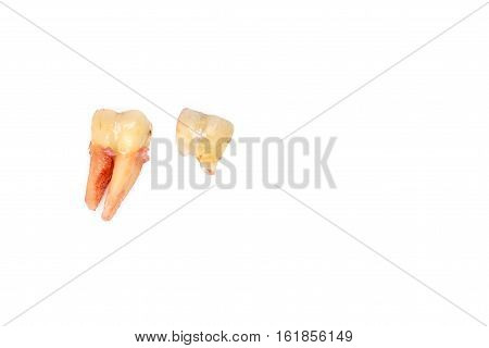 Broken Tooth Removal With Dental Caries On White