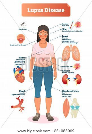 Lupus Disease Vector Illustration. Labeled Diagram With Sickness Symptoms, Like Hair Loss, High Bloo