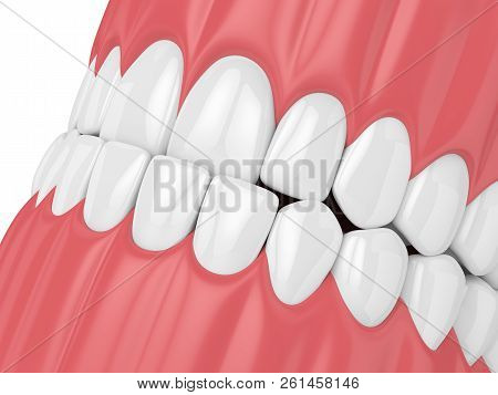 3D Render Of Jaw Malocclusion With Underbite