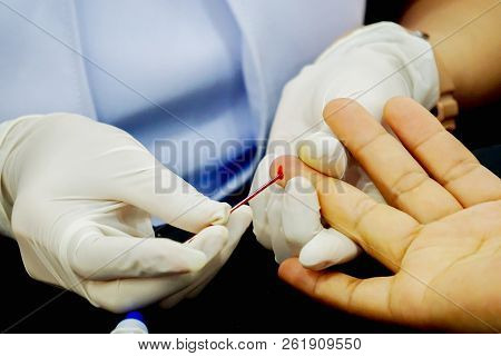 Closeup hands of nurse wear a rubber white medical gloves using capillary tube touch and drain on the blood of human ring finger to check glucose in blood at medical clinic. poster