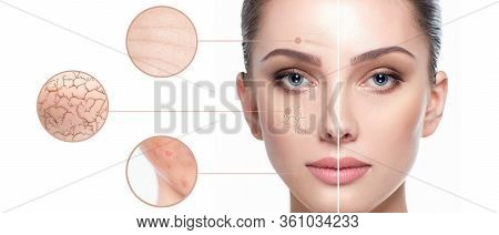 Female Face Close-up, Showing Skin Problems. Dry Skin, Acne, Wrinkles And Other Imperfections. Rejuv