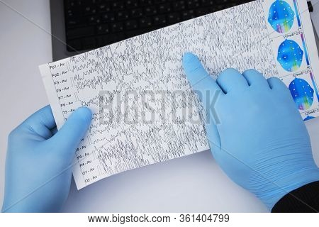 A Neurologist Examines An Encephalogram Of A Patient's Brain. Schedule Of Electroencephalograms - St