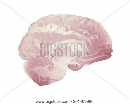 Median Section Of The Brain, Anatomy Of The Human Brain