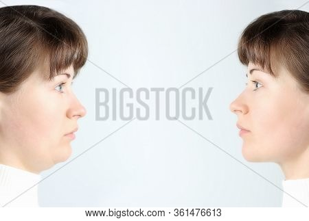Profile Of Female Face With And Without A Second Chin, Concept Before And After Plastic Surgery
