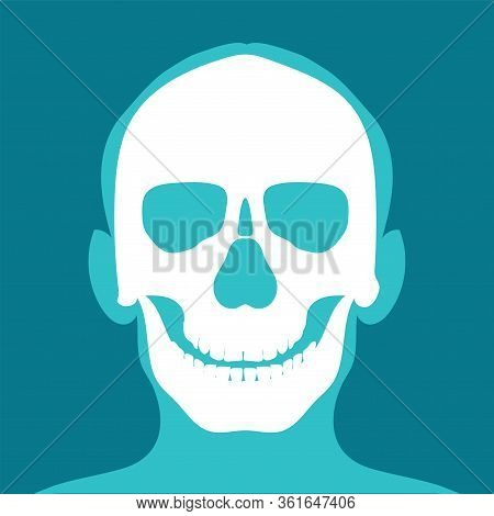 Xray Of Head And Neck Isolated On Blue Backdround. The Joints And Bones,human Joints, Skeletal Spina