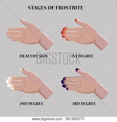 Medical Vector Illustration. Frostbite Stages. Blue And Red Frostbitten Fingers.  Stages Of Hypother