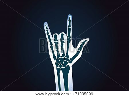 Hand X-ray while doing love sign. This illustration about love concept and health care.