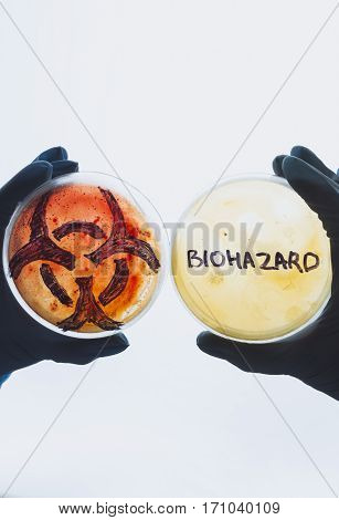 Hands hold Petri dishes with biohazard word symbol sign. Contaminated water food concept. Dangerous infectious disease. Medical lab testing research. Bacterial infection control prevention outbreak
