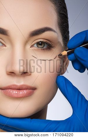 Plastic surgeon drawing dashed line under eye of girl. Beautiful girl. Hands in blue glove holding pencil. Plastic surgery, beauty portrait, closeup, half face