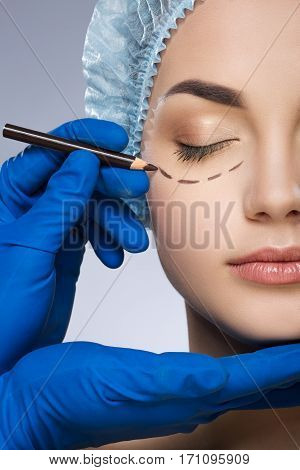 Plastic surgeon drawing dashed lines under eyes of girl. Hands in blue glove holding pencil. Girl with closed eyes in protective cap. Plastic surgery, beauty portrait, half face, closeup