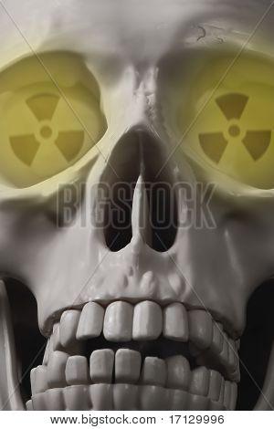 Radioaktív fej
