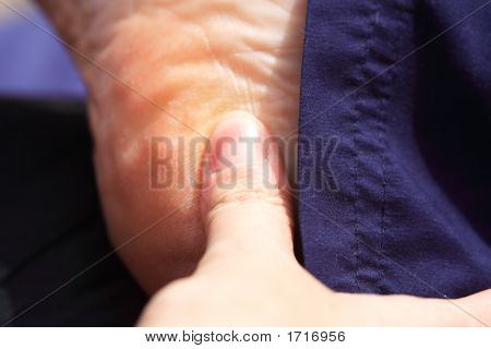 Deep Tissue Massage To The Heel Of The Foot