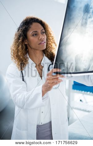Physiotherapist holding spine x-ray of patient in clinic