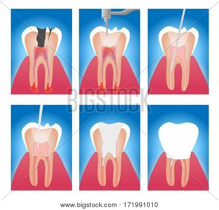 infographic stages of root canal treatment vector