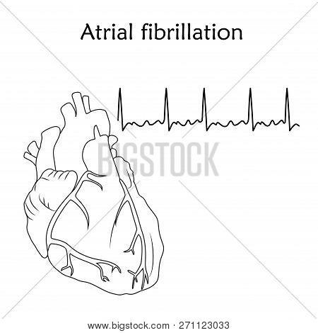Human Heart. Atrial Fibrillation. Anatomy Flat Illustration. Outline Image, White Background. Heartb