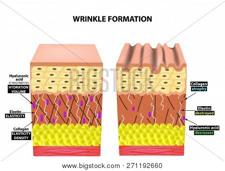 The Appearance Of Wrinkles. Anatomical Structure Of The Skin. Elastin, Hyaluronic Acid, Collagen. In