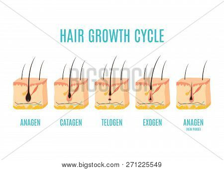 Hair Growth Cycle Medical Educational Poster. Skin Ross-section Showing A Hair Follicle In Anagen, T