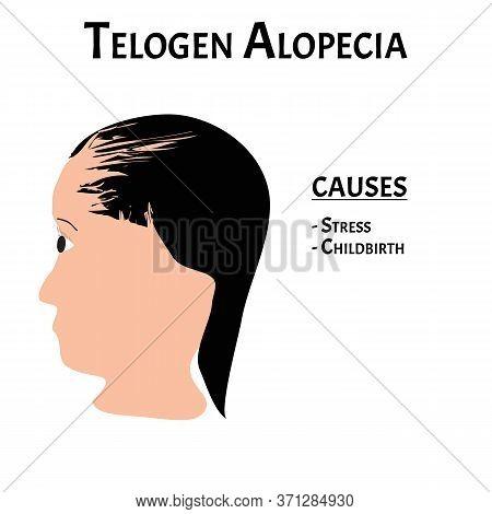Alopecia Hair. Baldness Of Hair On The Head. Telogen Alopecia Causes. Infographics. Illustration On
