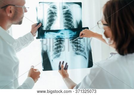 Male Doctor And Young Female Colleague Examining Patient Chest X-ray Film Lungs Scan At Radiology De