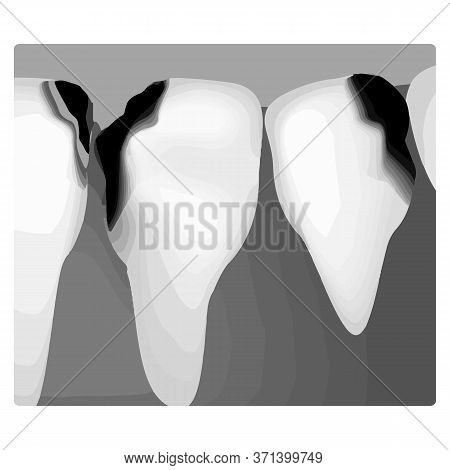 Dental Caries. X-ray Of Tooth Decay. Caries Infographics. Illustration On Isolated Background.
