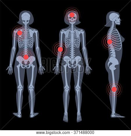 Human Woman Skeleton Pain, Fracture Or Inflammation In Front, Profile And Back On X Ray View. Vector