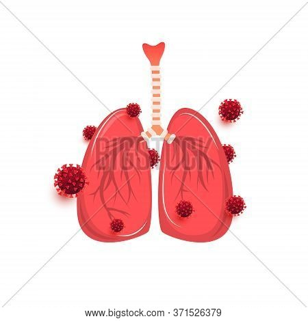 Coronavirus Pneumonia And Lung Infection By The Virus Isolated On White Background. Disease, Cancer