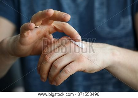 Close-up, Man Applying Cream On Skin His Hand. Skin Protection Against Penetration Infections And Ba